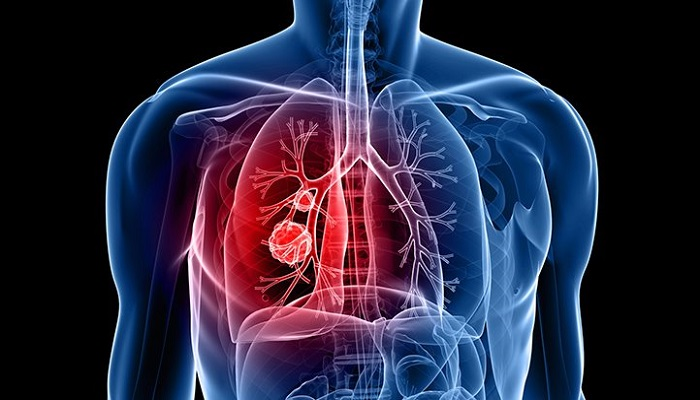 tumor formation in lung cancer