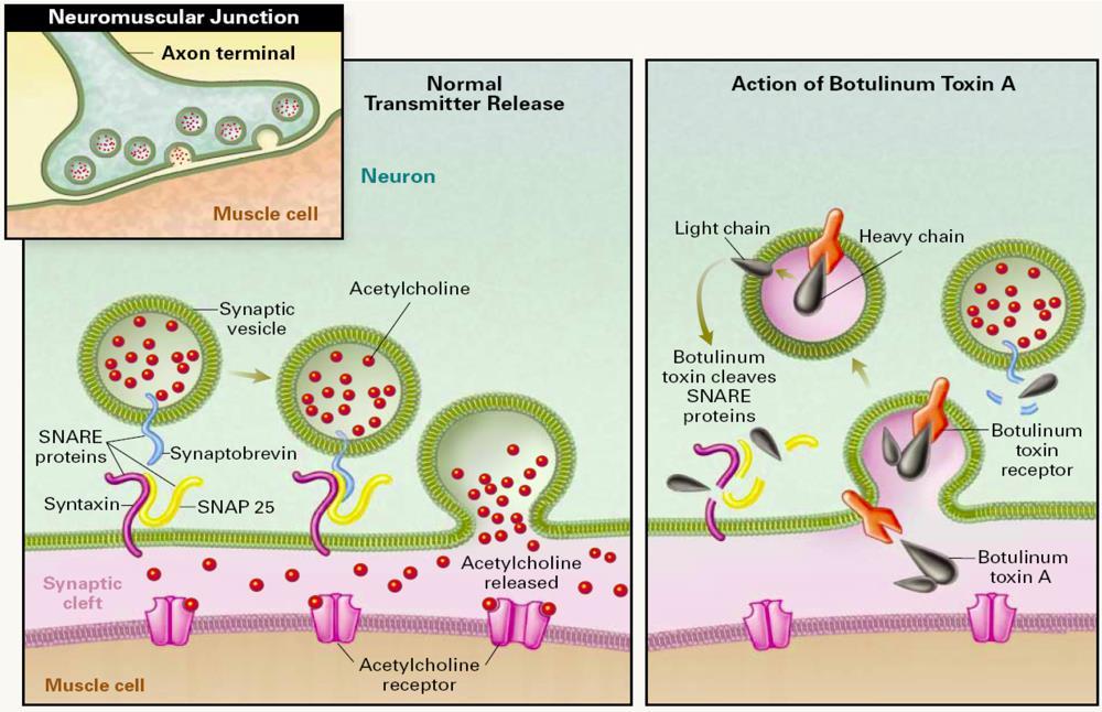 Botulinum toxin blocks the cell signaling pathways