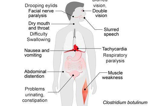 botulism symptoms